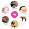 PRP Treatment Kit